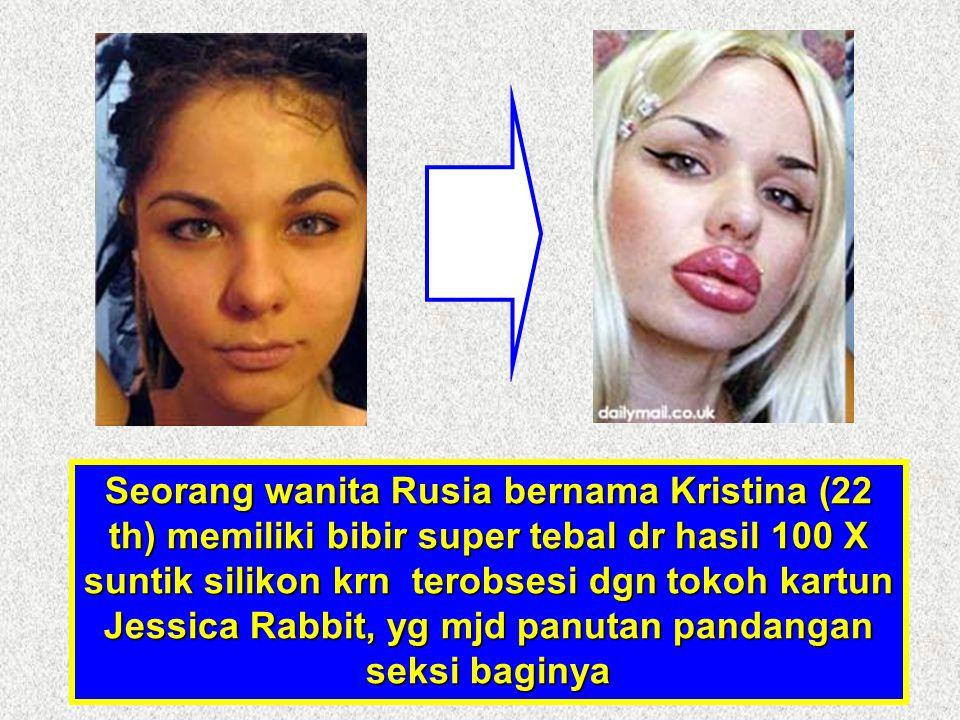 Seorang wanita Rusia bernama Kristina (22 th) memiliki bibir super tebal dr hasil 100 X suntik silikon krn terobsesi dgn tokoh kartun Jessica Rabbit, yg mjd panutan pandangan seksi baginya