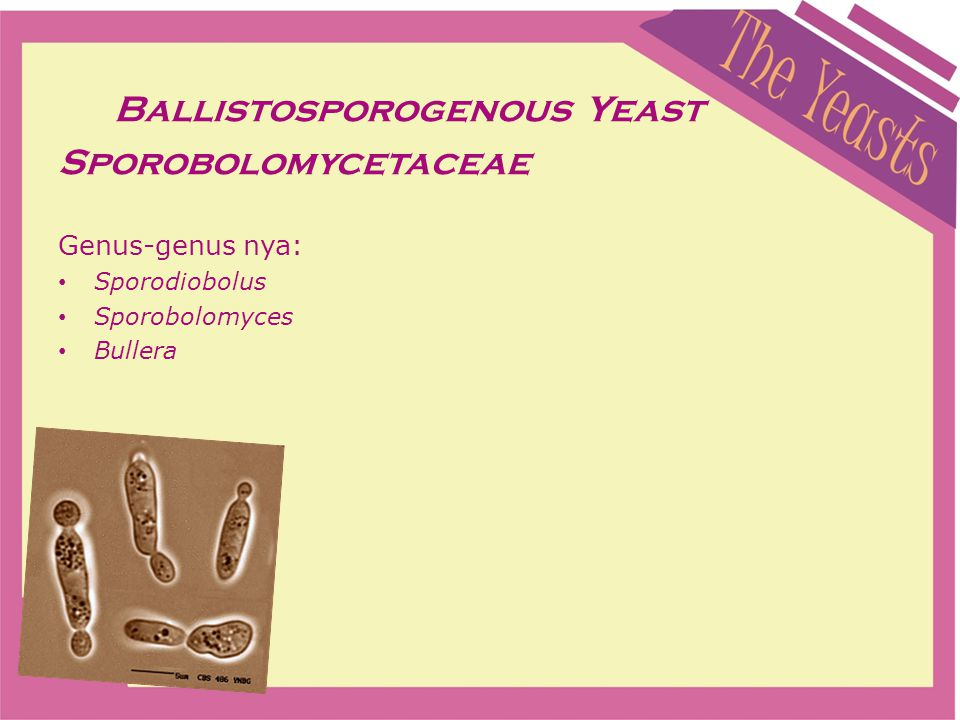 Ballistosporogenous Yeast Sporobolomycetaceae Genus-genus nya: Sporodiobolus Sporobolomyces Bullera