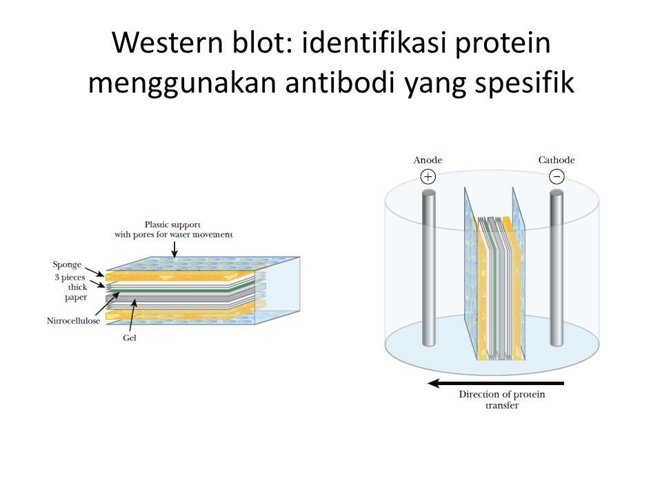 Western blot: identifikasi protein menggunakan antibodi yang spesifik