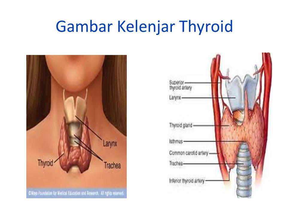 Gambar Kelenjar Thyroid