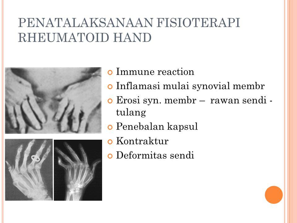 PENATALAKSANAAN FISIOTERAPI RHEUMATOID HAND Immune reaction Inflamasi mulai synovial membr Erosi syn. membr – rawan sendi - tulang Penebalan kapsul Ko