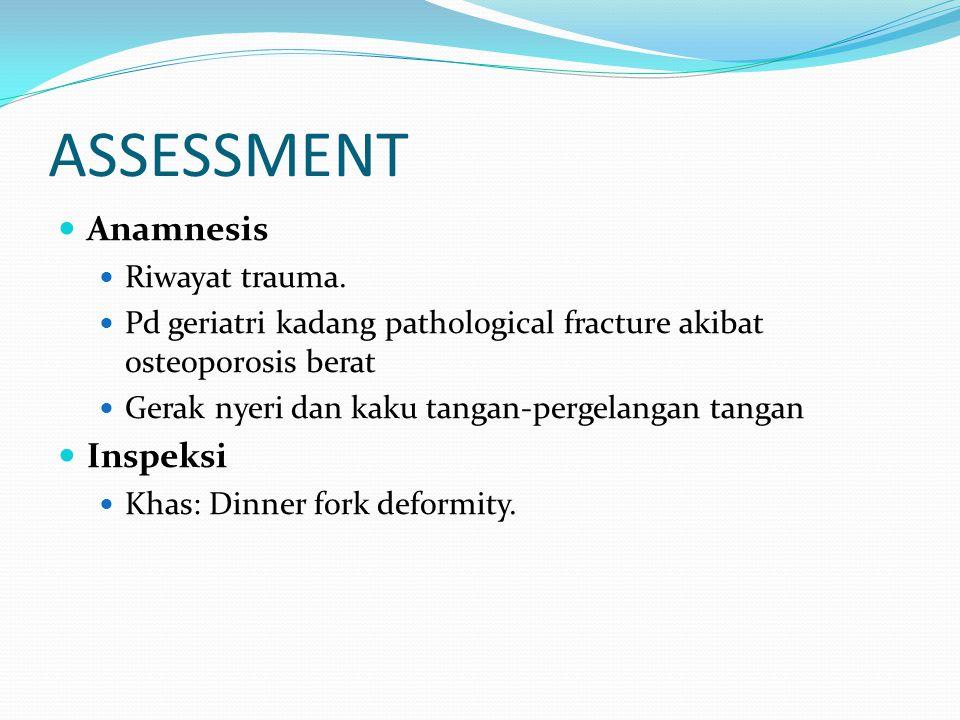 ASSESSMENT Anamnesis Riwayat trauma.
