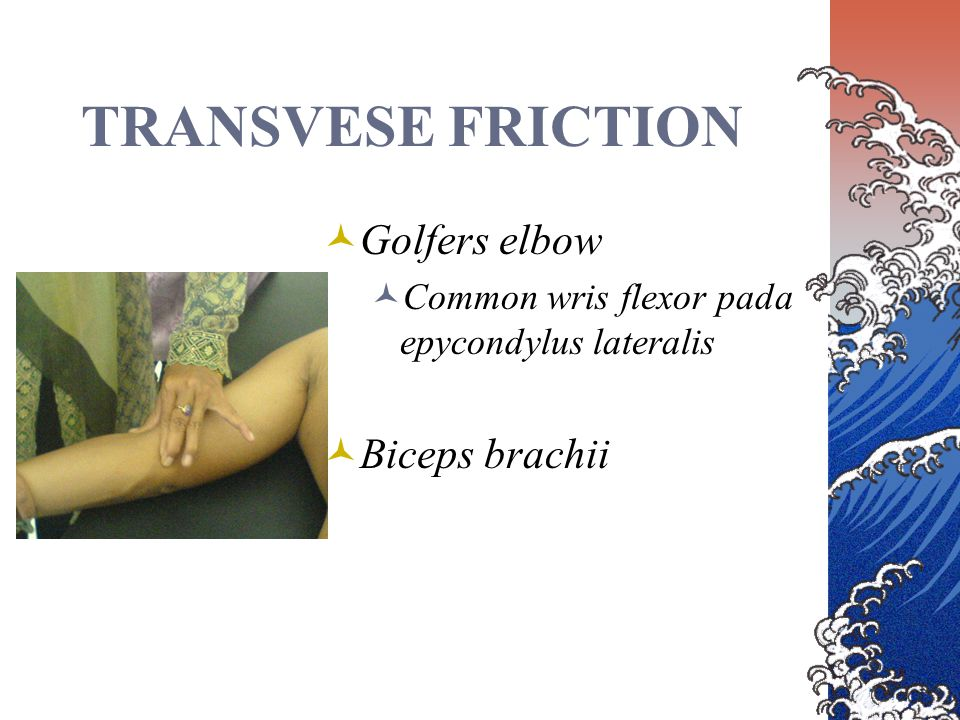 TRANSVESE FRICTION Golfers elbow Common wris flexor pada epycondylus lateralis Biceps brachii