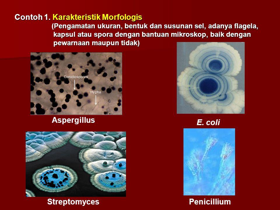 Contoh 1. Karakteristik Morfologis (Pengamatan ukuran, bentuk dan susunan sel, adanya flagela, (Pengamatan ukuran, bentuk dan susunan sel, adanya flag