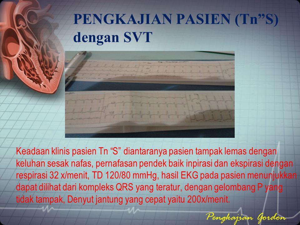 "PENGKAJIAN PASIEN (Tn""S) dengan SVT Keadaan klinis pasien Tn ""S"" diantaranya pasien tampak lemas dengan keluhan sesak nafas, pernafasan pendek baik in"