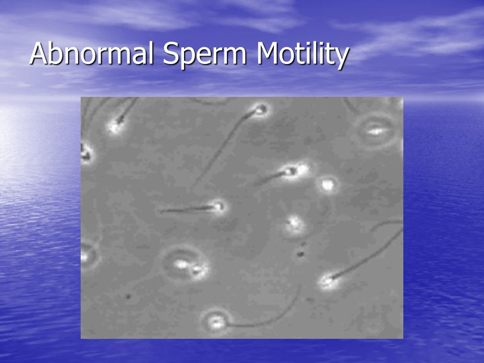 Abnormal Sperm Motility