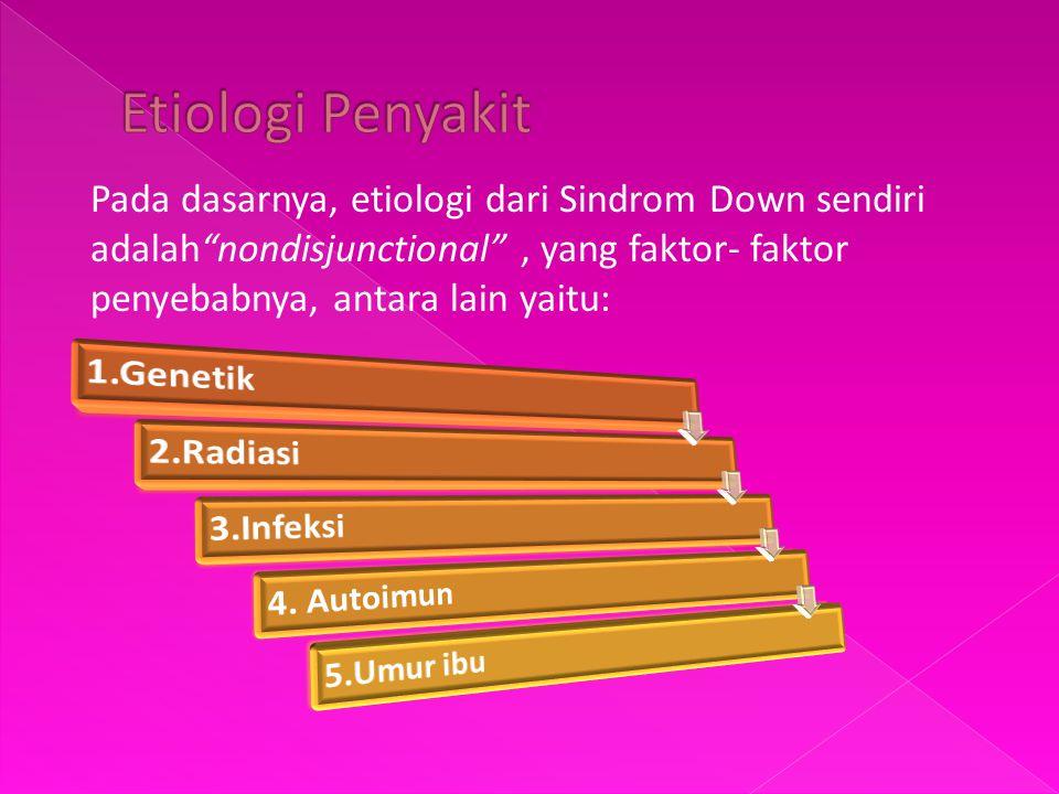 """Pada dasarnya, etiologi dari Sindrom Down sendiri adalah""""nondisjunctional"""", yang faktor- faktor penyebabnya, antara lain yaitu:"""