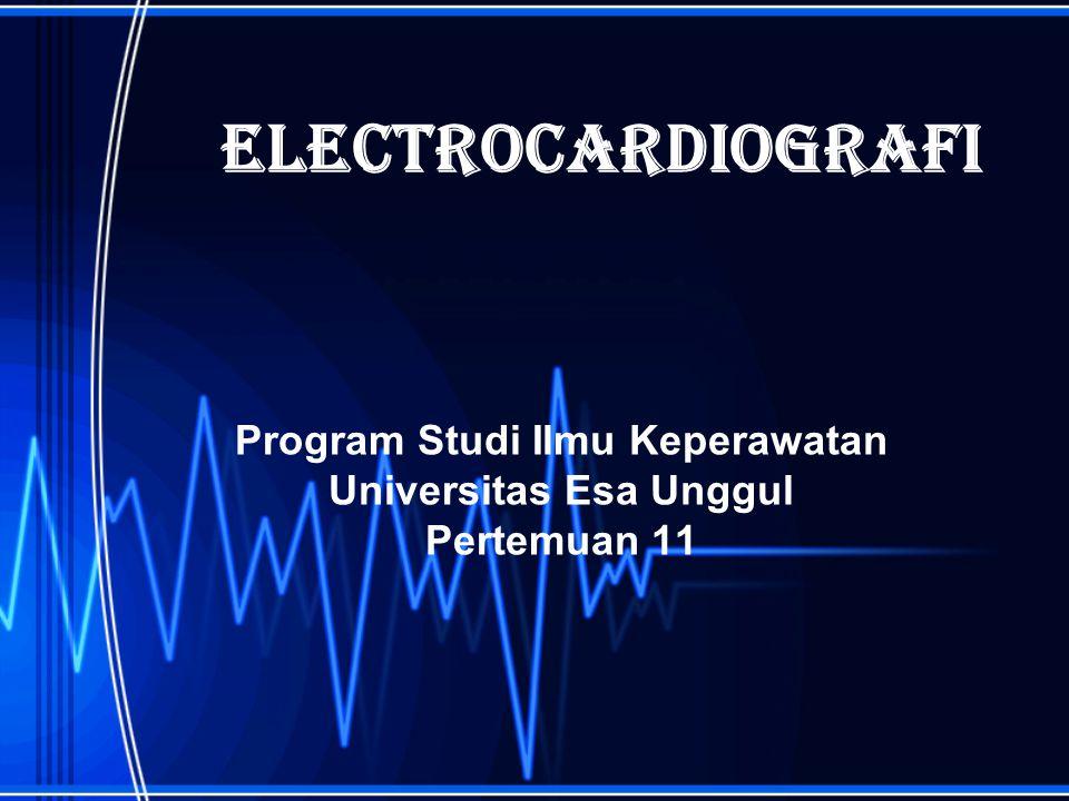 Pendahuluan Elektrokardiografi adalah ilmu yang mempelajari aktivitas listrik jantung Elektrokardiogram (EKG) adalah suatu grafik yang menggambarkan rekaman listrik jantung Kegiatan listrik jantung dalam tubuh dapat dicatat dan direkam melalui elektroda- elektroda yang di pasang pada permukaan tubuh EKG hanyalah salah satu pemeriksaan laboratorium yang merupakan alat bantu dalam menegakkan diagnosis penyakit jantung
