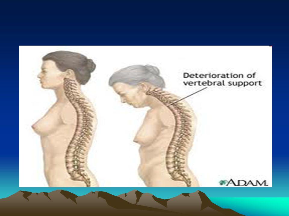 Rachitis maupun Osteomalacia dapat disembuhkan diatasi dengan makan cukup banyak makanan yang mengandung Calcium.