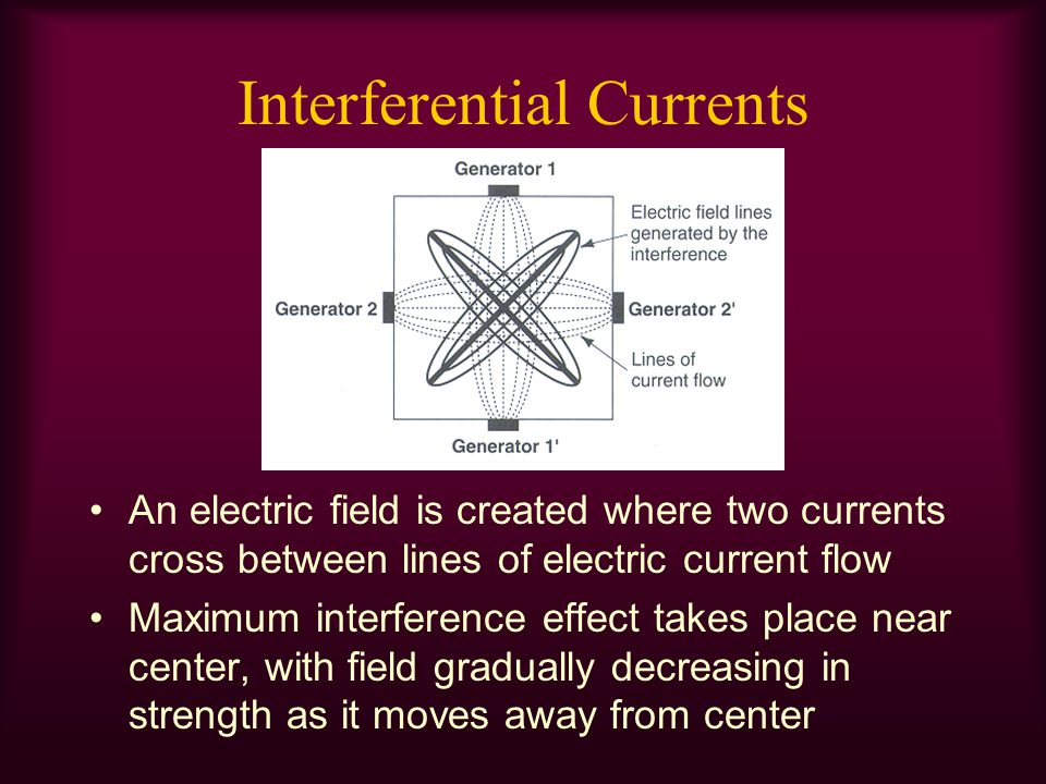 Interferential Currents An electric field is created where two currents cross between lines of electric current flow Maximum interference effect takes
