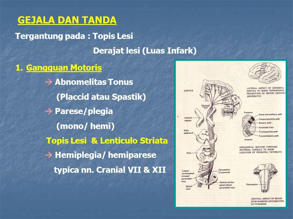 GEJALA DAN TANDA Tergantung pada : Topis Lesi Derajat lesi (Luas Infark) 1.Gangguan Motoris  Abnomelitas Tonus (Placcid atau Spastik)  Parese/plegia