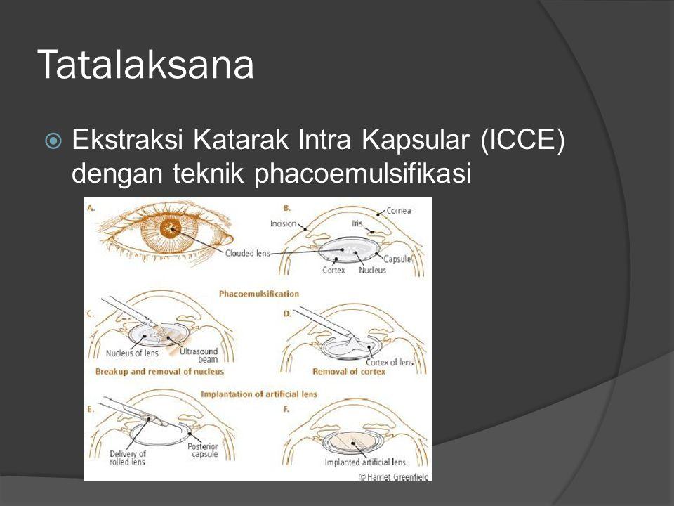  Ekstraksi Katarak Intrakapsular (ICCE)