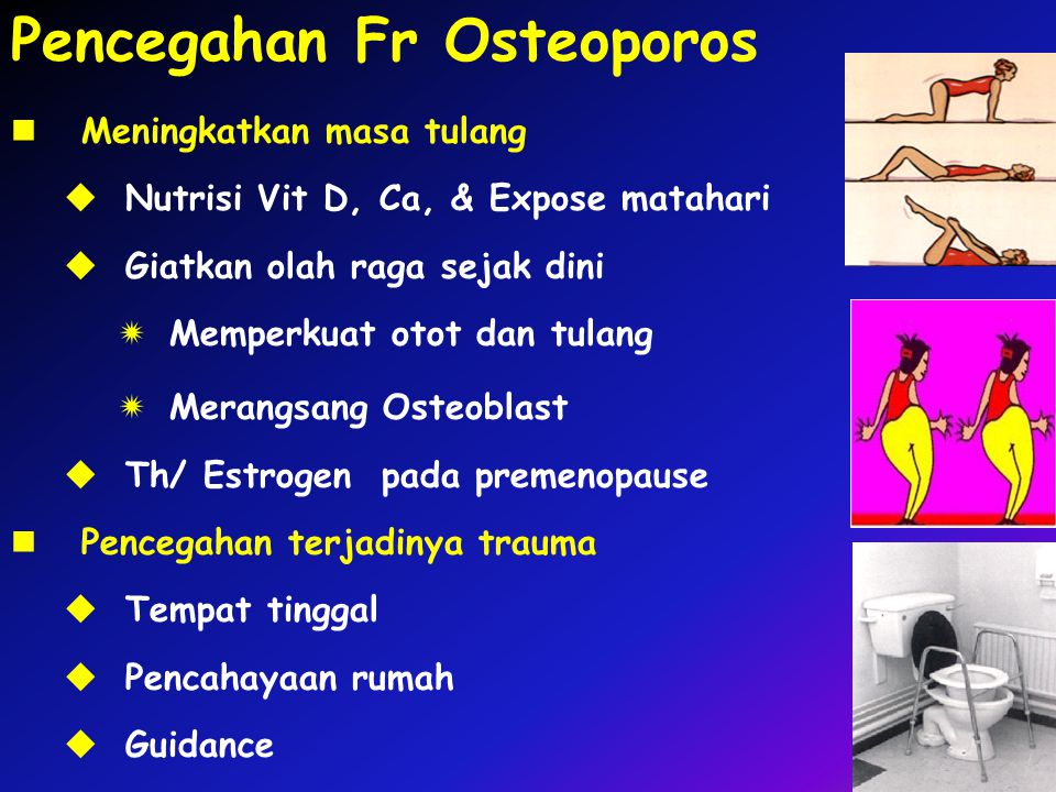 Pencegahan Fr Osteoporos Meningkatkan masa tulang  Nutrisi Vit D, Ca, & Expose matahari  Giatkan olah raga sejak dini  Memperkuat otot dan tulang 