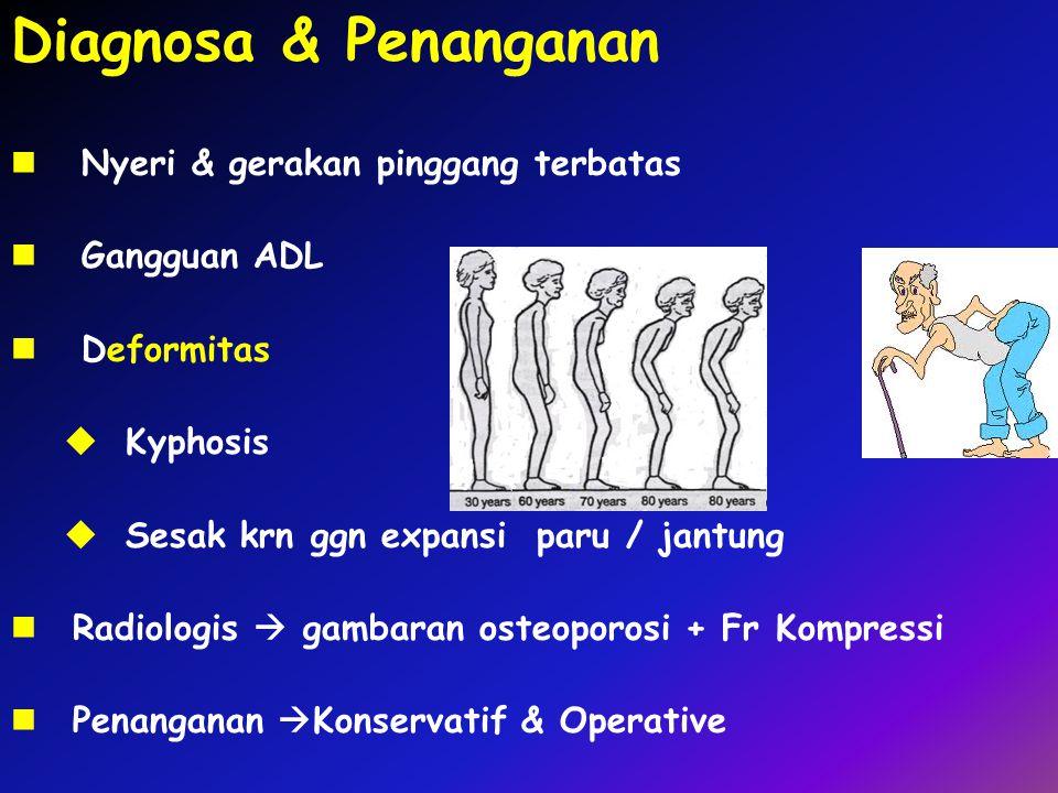 Nyeri & gerakan pinggang terbatas Gangguan ADL Deformitas  Kyphosis  Sesak krn ggn expansi paru / jantung Radiologis  gambaran osteoporosi + Fr Kom