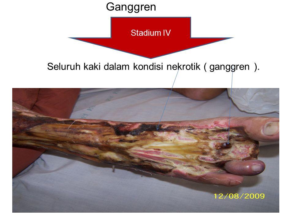Ganggren Seluruh kaki dalam kondisi nekrotik ( ganggren ). Stadium IV