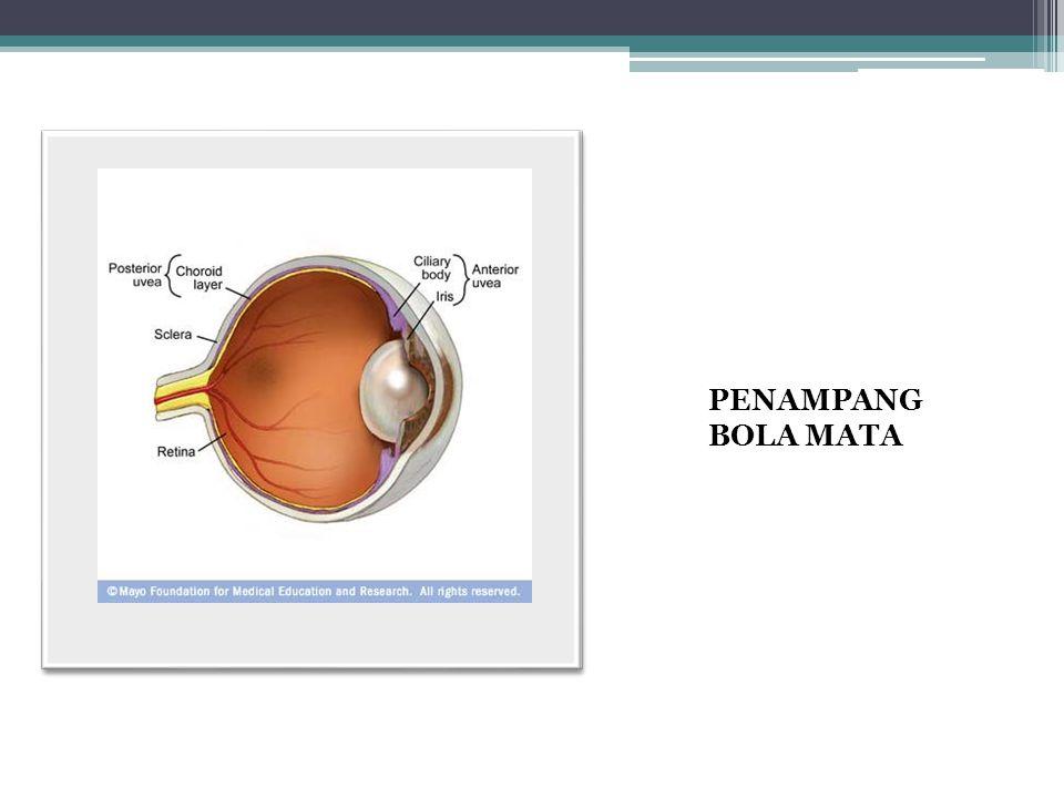 OKLUSI ARTERI RETINA Kelainan vaskuler retina Diskontinuitas sirkulasi Ada 2 : 1.Oklusi arteri retina sentralis (CRAO) 2.Oklusi arteri retina cabang (BRAO) Insiden :  Usia pertengahan  Tua