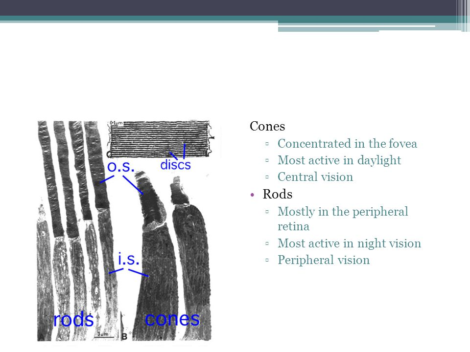 ARMD Tipe Wet  Kilnis ▫Visus menurun mendadak, metamorphopsia, skotoma sentral ▫Fundus ▫Neovasculer dari koriokapilaris ▫Sikatrik fibrovaskuler disiformis ▫Perdarahan subretina ▫Perdarahan vitreous ▫Ablatio retina eksudatif  Terapi ▫Roborantia ▫Kacamata pelindung ▫Anti VEGF ▫PDT