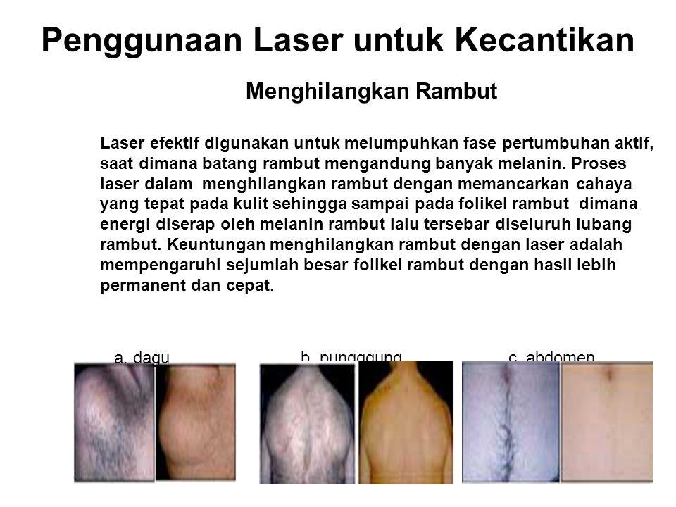 Penggunaan Laser untuk Kecantikan Menghilangkan Rambut Laser efektif digunakan untuk melumpuhkan fase pertumbuhan aktif, saat dimana batang rambut men
