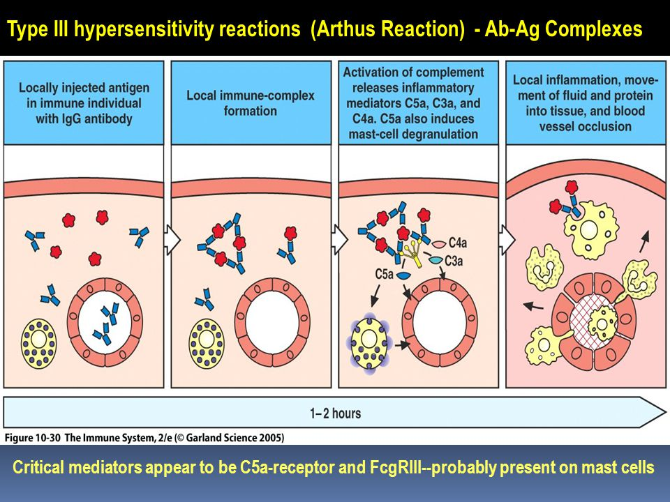 Type III hypersensitivity reactions (Arthus Reaction) - Ab-Ag Complexes Critical mediators appear to be C5a-receptor and FcgRIII--probably present on mast cells