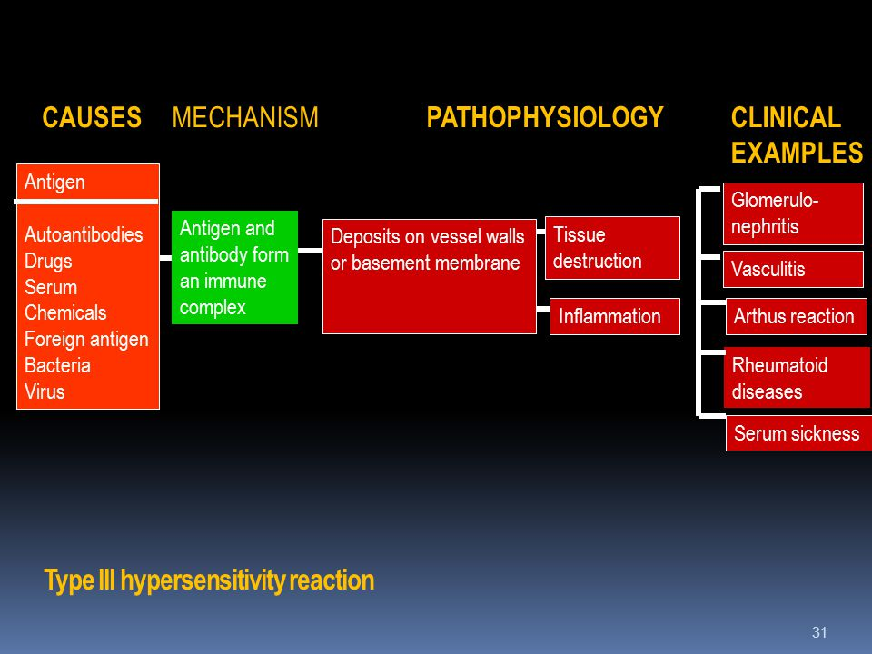Type III hypersensitivity reaction 31 CAUSES MECHANISM PATHOPHYSIOLOGY CLINICAL EXAMPLES Tissue destruction Inflammation Antigen and antibody form an immune complex Antigen Autoantibodies Drugs Serum Chemicals Foreign antigen Bacteria Virus Glomerulo- nephritis Vasculitis Arthus reaction Rheumatoid diseases Serum sickness Deposits on vessel walls or basement membrane