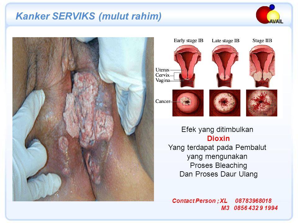 AVAIL Efek yang ditimbulkan Dioxin Yang terdapat pada Pembalut yang mengunakan Proses Bleaching Dan Proses Daur Ulang Kanker SERVIKS (mulut rahim) Contact Person ; XL 08783968018 M3 0856 432 9 1994