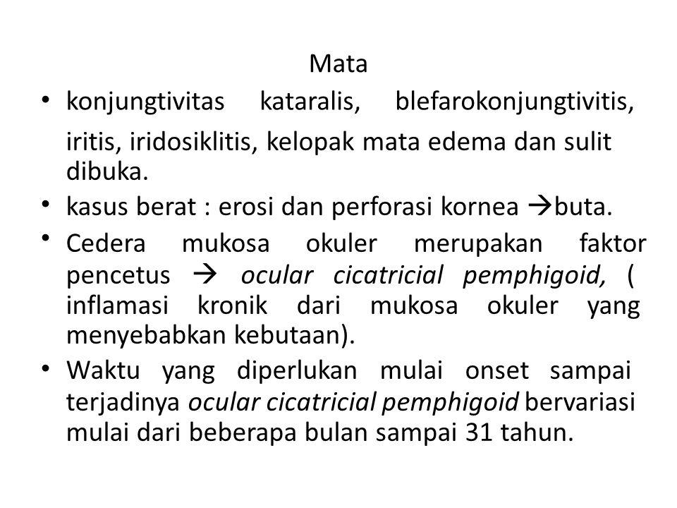 Diagnosis Diagnosis : Anamnesis, pemeriksaan fisis, dan laboratorium.