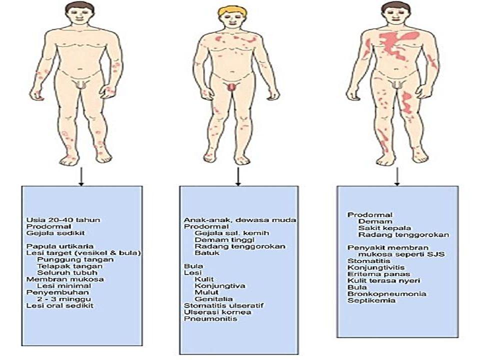 Infeksiviru s jamur bakteri parasit Herpessimpleks,Mycoplasmapneumoniae, vaksinia koksidioidomikosis,histoplasma streptokokus,Staphylococcshaemolyticus, Mycobacteriumtuberculosis,salmonela malaria Obat salisilat,sulfa,penisilin,etambutol,tegretol, tetrasiklin,digitalis,kontraseptif,klorpromazin, karbamazepin,kinin,analgetik/antipiretik MakananCoklat Fisikudaradingin,sinarmatahari,sinarX Lain-lainpenyakitkolagen,keganasan,kehamilan Faktor penyebab timbulnya Sindrom Stevens-Johnson (Dikutip dengan modifikasi dari SL Moschella dan HJ Hurley, 1985)
