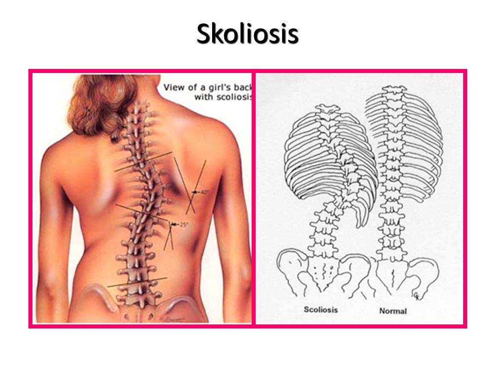 Gangguan Tulang Kesalahan Sikap Duduk – Lordosis : kelainan tulang leher dan punggung yg terlalu membengkok ke depan. – Kifosis : kelainan tulang pung