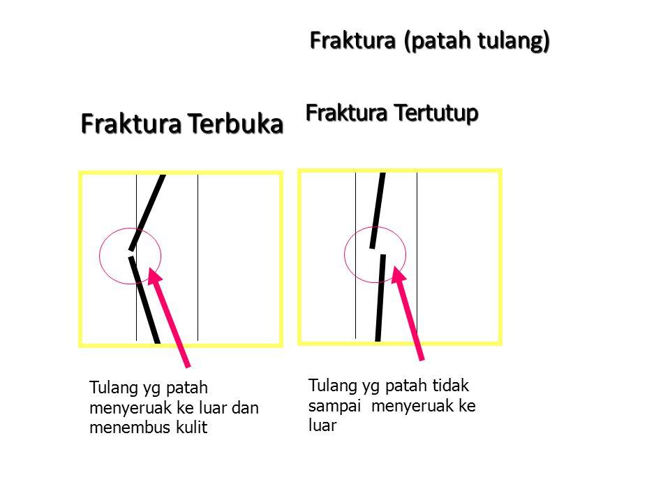 Gangguan dan Kelainan pada Tulang Gangguan Tulang Mekanis – Fraktura (patah tulang). Co: fraktura terbuka, fraktura tertutup, remuk dan retak – Bisa k
