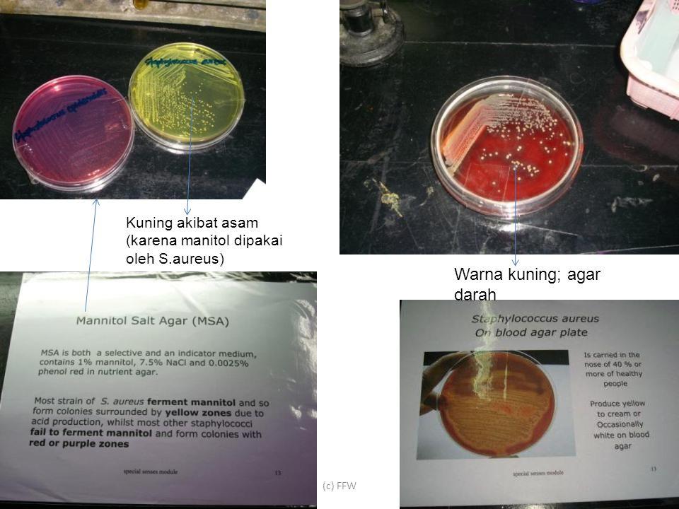 (c) FFW Kuning akibat asam (karena manitol dipakai oleh S.aureus) Warna kuning; agar darah