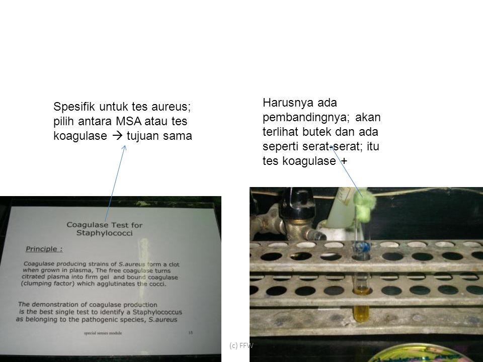 (c) FFW Harusnya ada pembandingnya; akan terlihat butek dan ada seperti serat-serat; itu tes koagulase + Spesifik untuk tes aureus; pilih antara MSA atau tes koagulase  tujuan sama