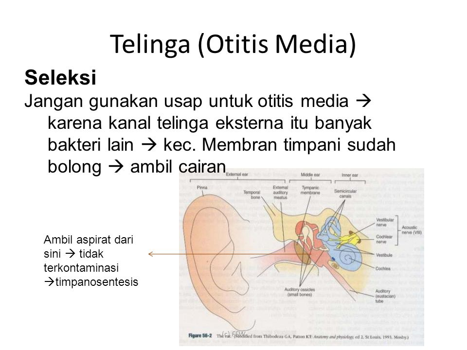 Ambil aspirat dari sini  tidak terkontaminasi  timpanosentesis Seleksi Jangan gunakan usap untuk otitis media  karena kanal telinga eksterna itu banyak bakteri lain  kec.
