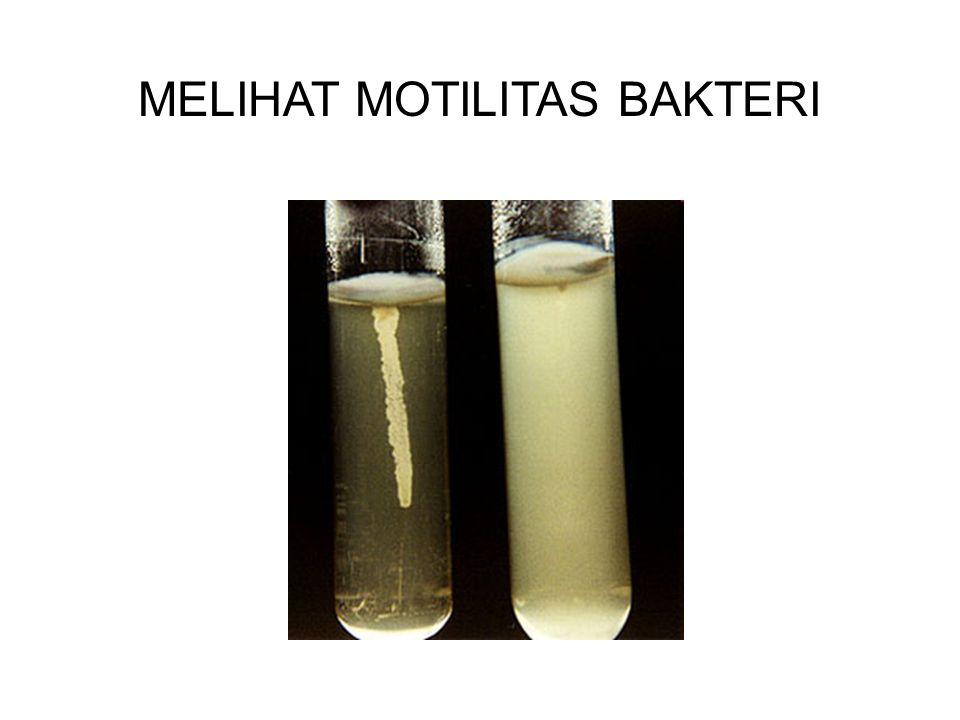 MELIHAT MOTILITAS BAKTERI