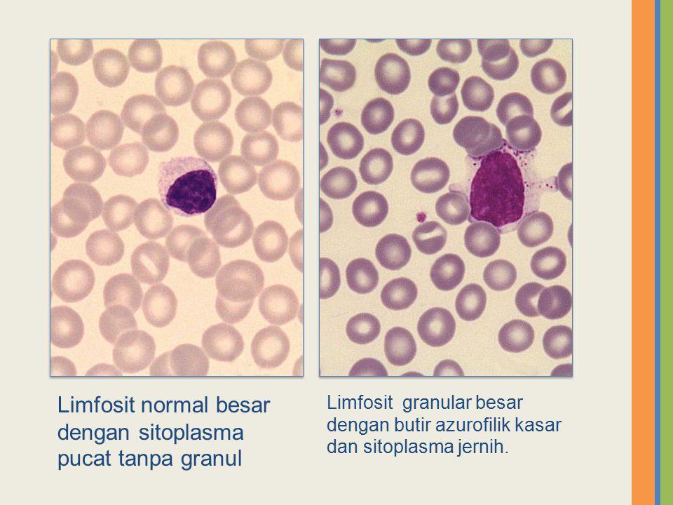 Limfosit normal besar dengan sitoplasma pucat tanpa granul Limfosit granular besar dengan butir azurofilik kasar dan sitoplasma jernih.