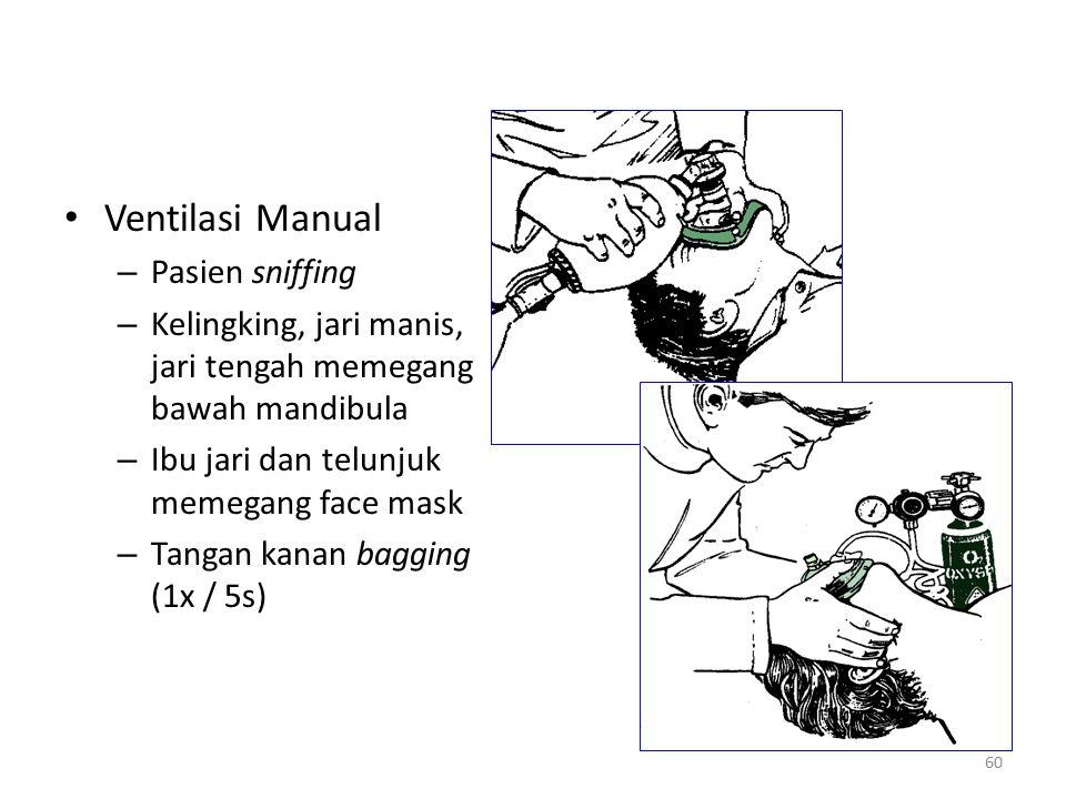 Ventilasi Manual – Pasien sniffing – Kelingking, jari manis, jari tengah memegang bawah mandibula – Ibu jari dan telunjuk memegang face mask – Tangan
