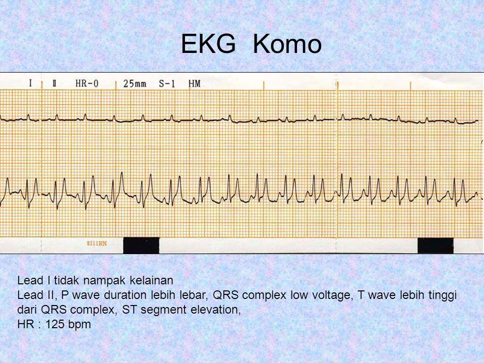 Lead III dan AVR terlihat abnormal T wave lebih tinggi dari R wave, dengan ST elevation