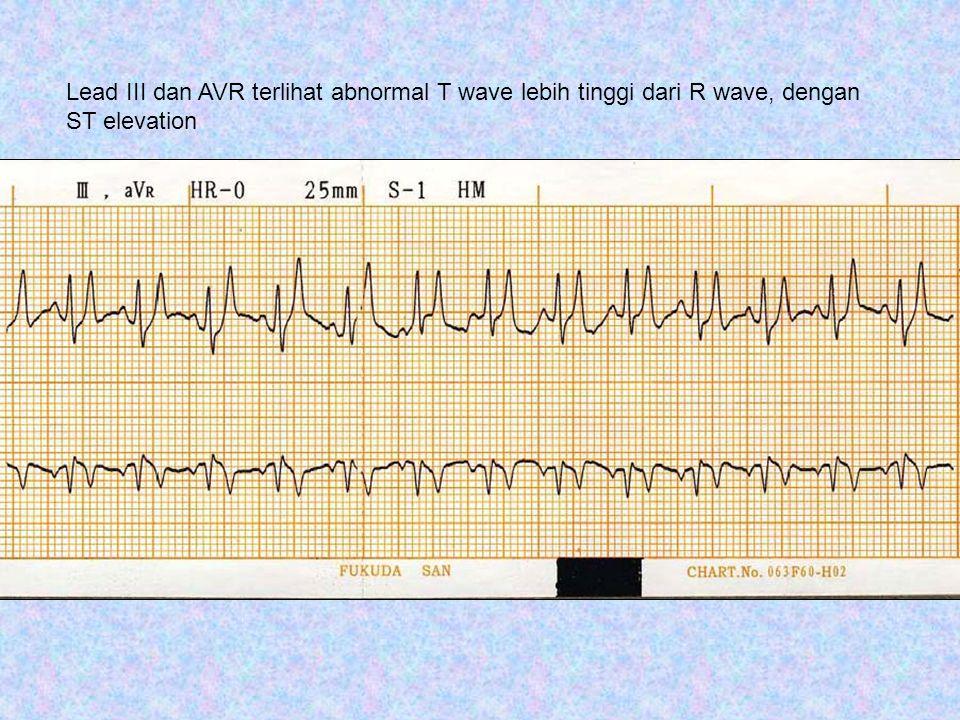 Kesimpulan: QRS complex pada semua lead low voltage dengan ST segment elevation dan T wave Lebih tinggi, dicurigai terjadinya pericardial effusion.