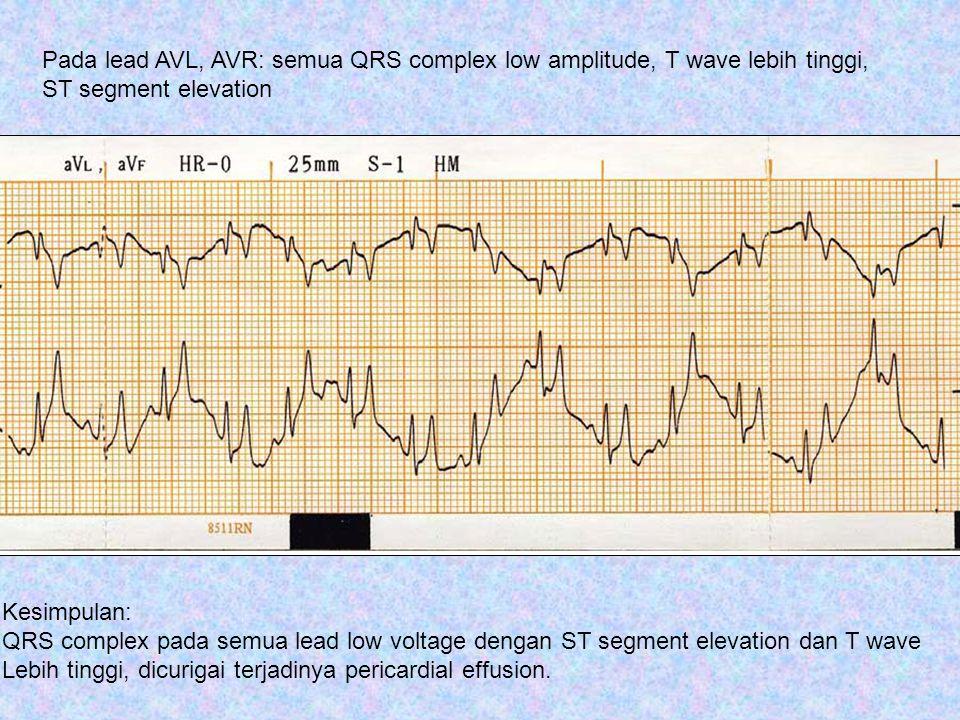 Kesimpulan: QRS complex pada semua lead low voltage dengan ST segment elevation dan T wave Lebih tinggi, dicurigai terjadinya pericardial effusion. Pa