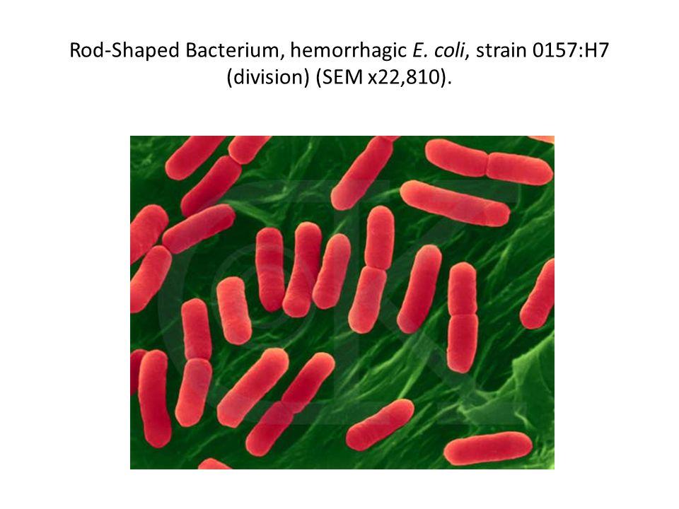 Rod-Shaped Bacterium, hemorrhagic E. coli, strain 0157:H7 (division) (SEM x22,810).