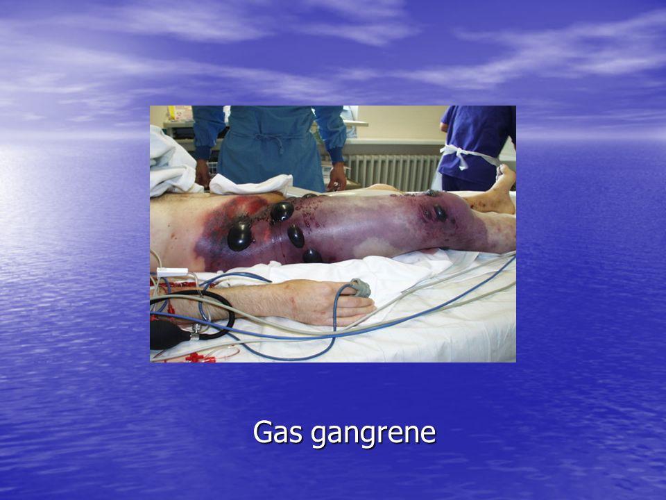 Gas gangrene Gas gangrene