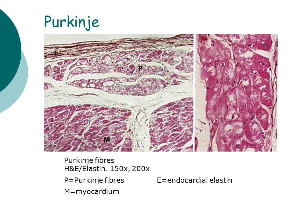 Purkinje Purkinje fibres H&E/Elastin. 150x, 200x P=Purkinje fibresE=endocardial elastin M=myocardium