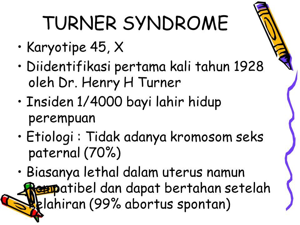 Karyotipe 45, X Diidentifikasi pertama kali tahun 1928 oleh Dr.