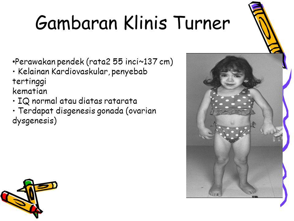 Gambaran Klinis Turner Perawakan pendek (rata2 55 inci~137 cm) Kelainan Kardiovaskular, penyebab tertinggi kematian IQ normal atau diatas ratarata Terdapat disgenesis gonada (ovarian dysgenesis)