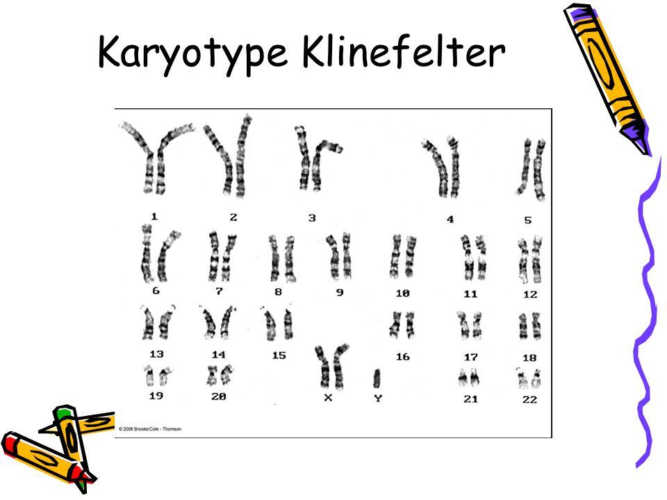 Karyotype Klinefelter