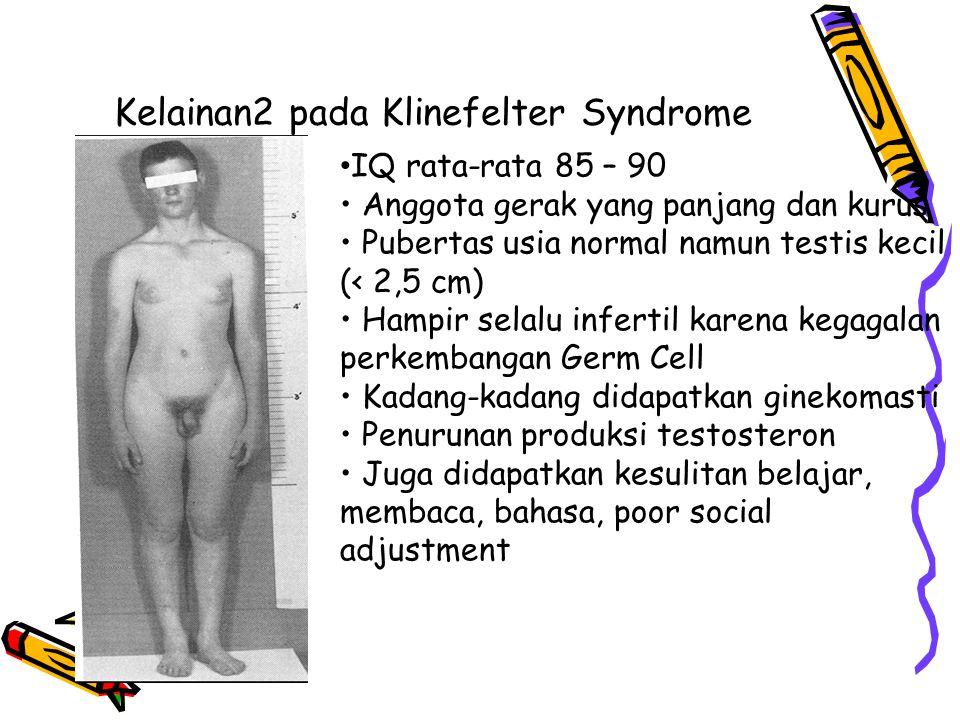 Kelainan2 pada Klinefelter Syndrome IQ rata-rata 85 – 90 Anggota gerak yang panjang dan kurus Pubertas usia normal namun testis kecil (< 2,5 cm) Hampir selalu infertil karena kegagalan perkembangan Germ Cell Kadang-kadang didapatkan ginekomasti Penurunan produksi testosteron Juga didapatkan kesulitan belajar, membaca, bahasa, poor social adjustment