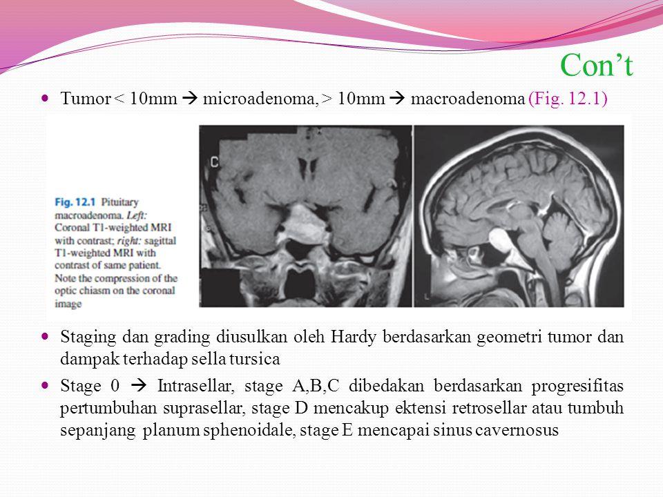 Con't Tumor 10mm  macroadenoma (Fig. 12.1) Staging dan grading diusulkan oleh Hardy berdasarkan geometri tumor dan dampak terhadap sella tursica Stag
