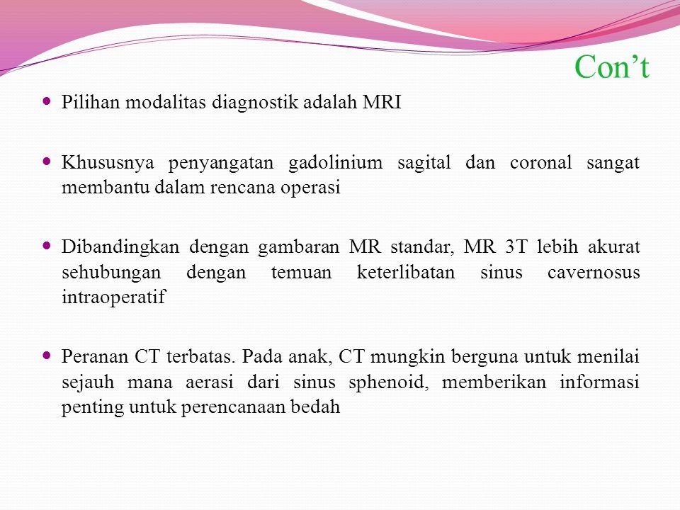Con't Pilihan modalitas diagnostik adalah MRI Khususnya penyangatan gadolinium sagital dan coronal sangat membantu dalam rencana operasi Dibandingkan