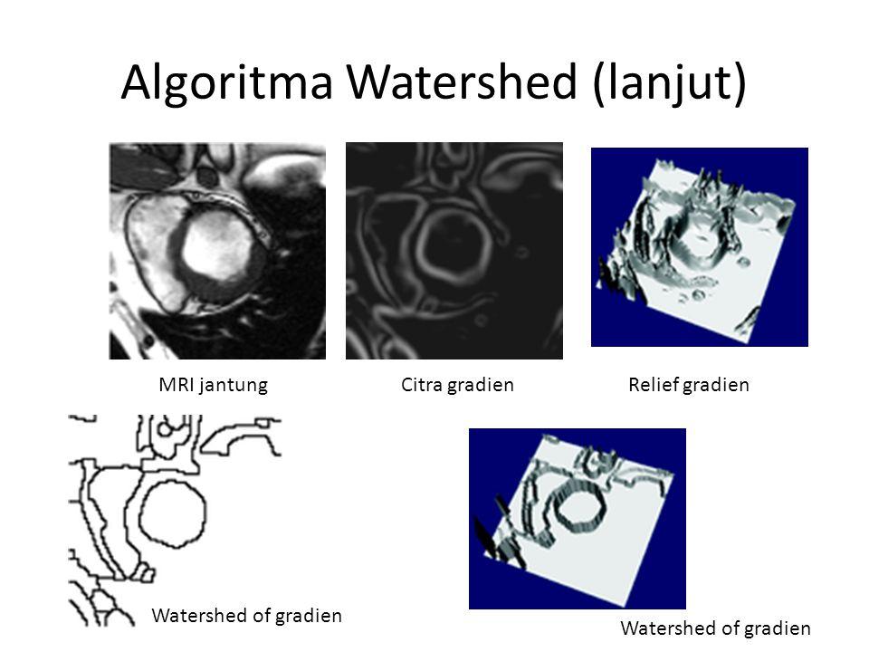 Algoritma Watershed (lanjut) MRI jantungCitra gradienRelief gradien Watershed of gradien