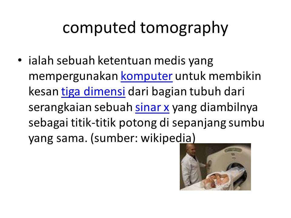 computed tomography ialah sebuah ketentuan medis yang mempergunakan komputer untuk membikin kesan tiga dimensi dari bagian tubuh dari serangkaian sebu