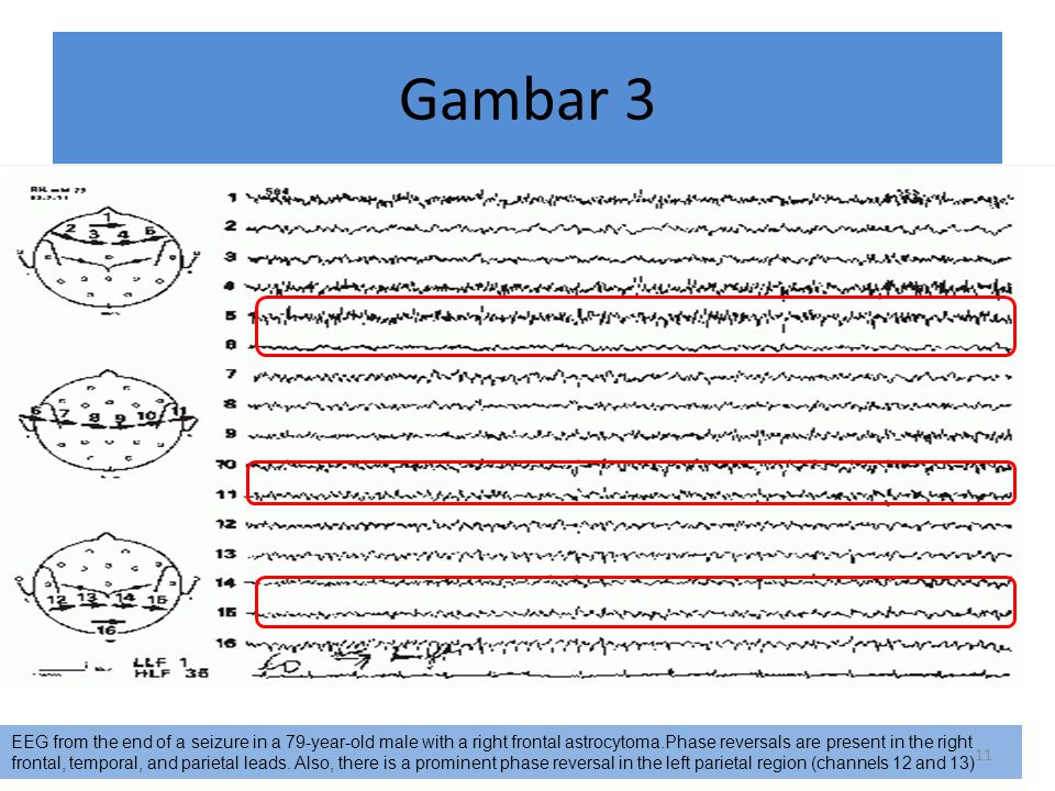 Gambar 3 EEG from the end of a seizure in a 79-year-old male with a right frontal astrocytoma.Phase reversals are present in the right frontal, tempor